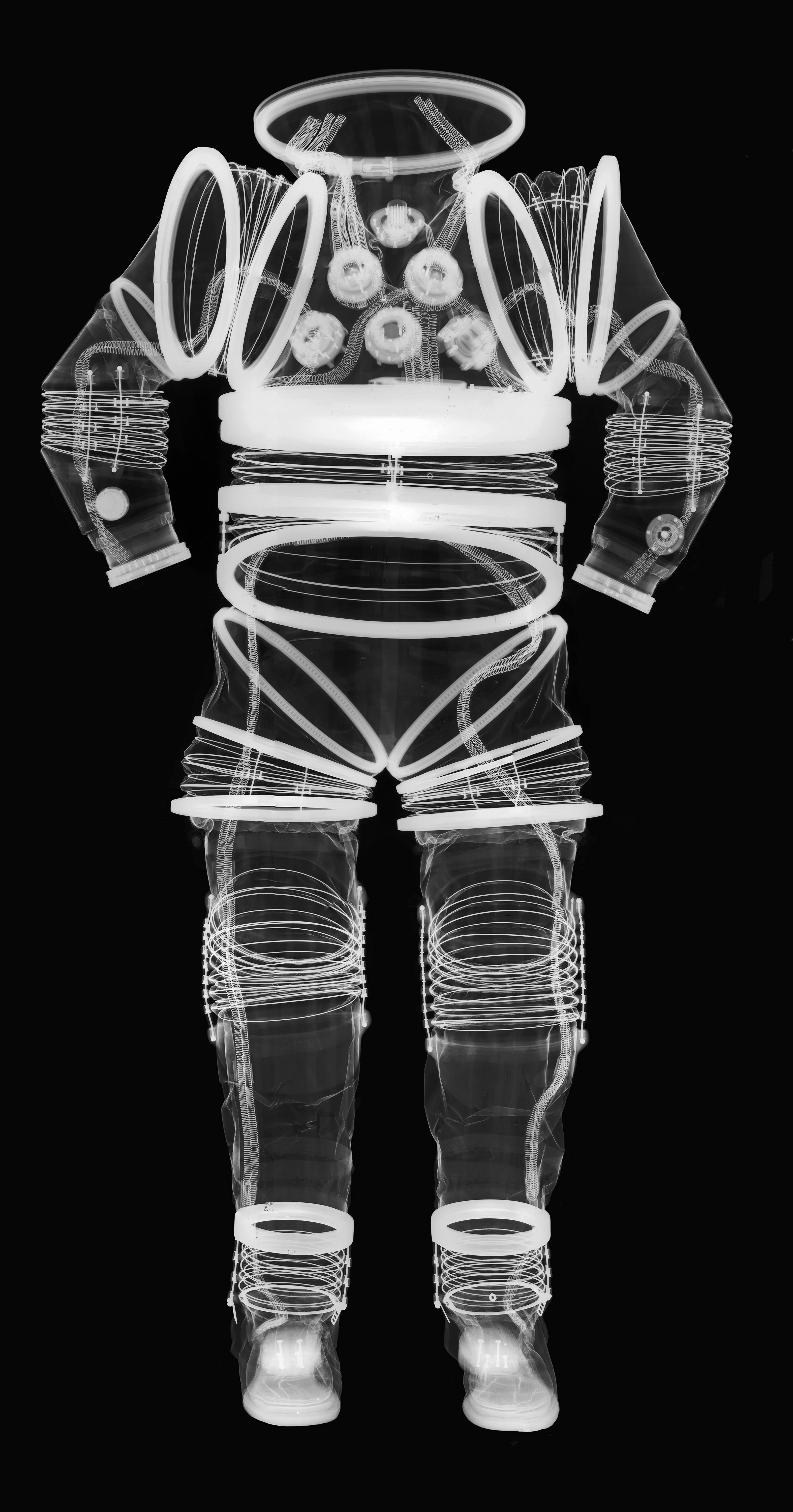 EX-1A Suit X-Ray