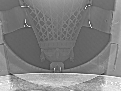 Balloon Chair X-Ray Detail