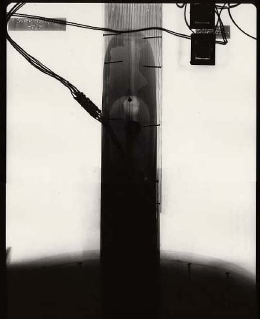 X-Ray Photograph from Saucer to Pylon Top